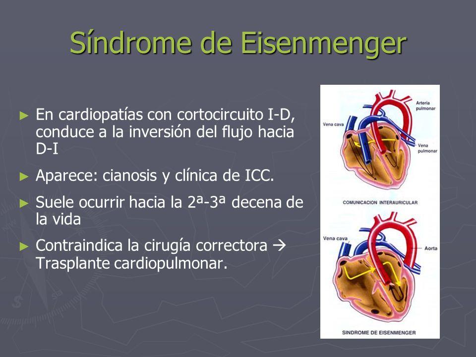 Síndrome de Eisenmenger En cardiopatías con cortocircuito I-D, conduce a la inversión del flujo hacia D-I Aparece: cianosis y clínica de ICC. Suele oc