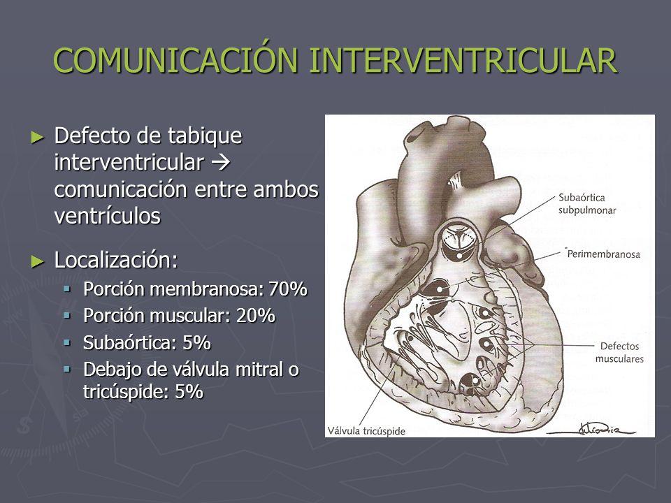 COMUNICACIÓN INTERVENTRICULAR Defecto de tabique interventricular comunicación entre ambos ventrículos Defecto de tabique interventricular comunicació