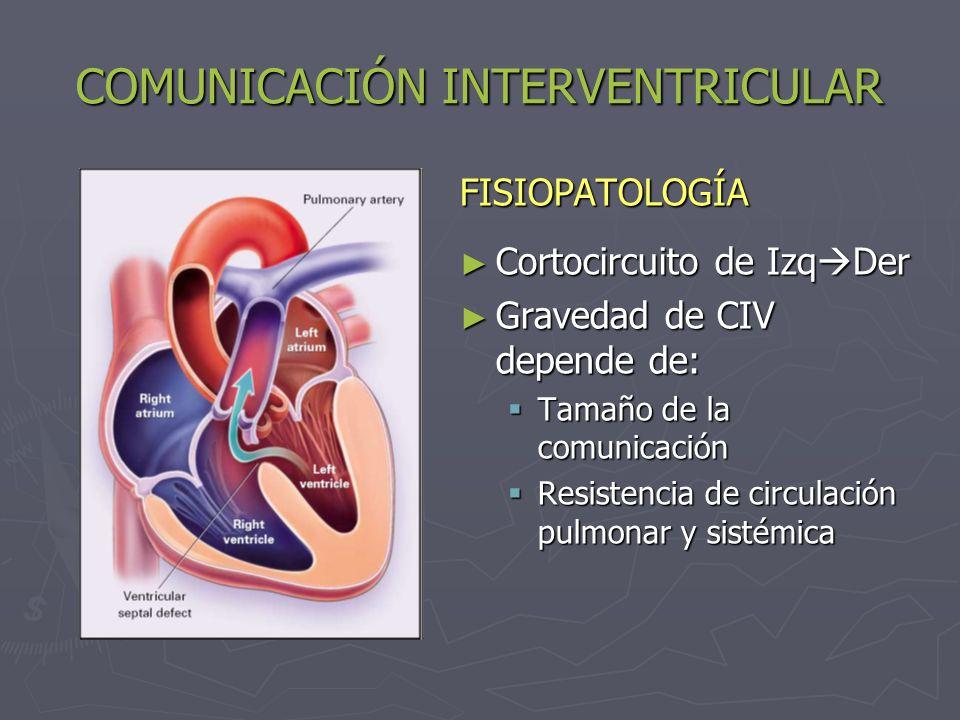 COMUNICACIÓN INTERVENTRICULAR FISIOPATOLOGÍA: CIV pequeñas: CIV pequeñas: Pequeño cortocircuito y flujo pulmonar normal CIV medianas: Qp/Qs: 2-4 CIV medianas: Qp/Qs: 2-4 Hiperaflujo pulmonar y aumento de P° pulmonar CIV gran tamaño: Qp/Qs > 4 CIV gran tamaño: Qp/Qs > 4 Ventrículo único, Sd.
