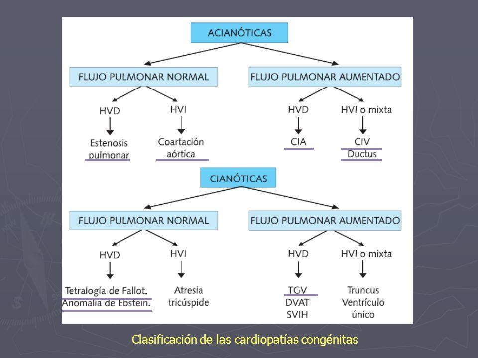 Clasificación de las cardiopatías congénitas