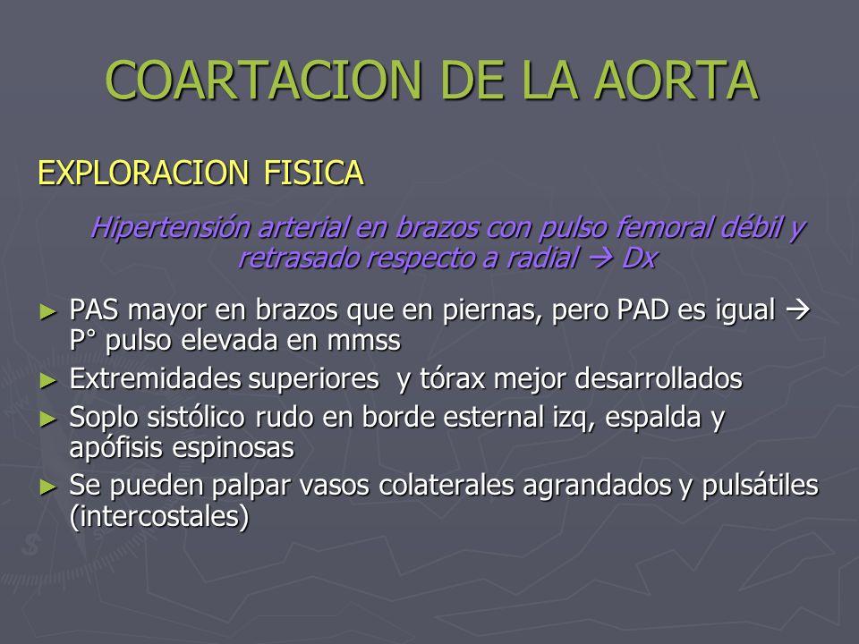 COARTACION DE LA AORTA EXPLORACION FISICA Hipertensión arterial en brazos con pulso femoral débil y retrasado respecto a radial Dx PAS mayor en brazos
