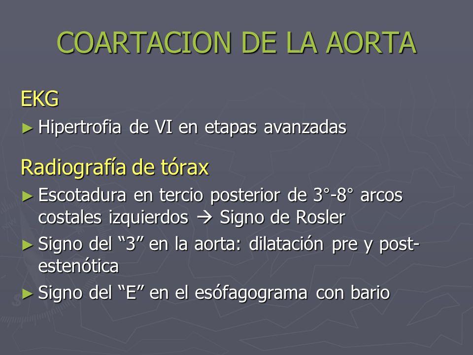 COARTACION DE LA AORTA EKG Hipertrofia de VI en etapas avanzadas Hipertrofia de VI en etapas avanzadas Radiografía de tórax Escotadura en tercio poste