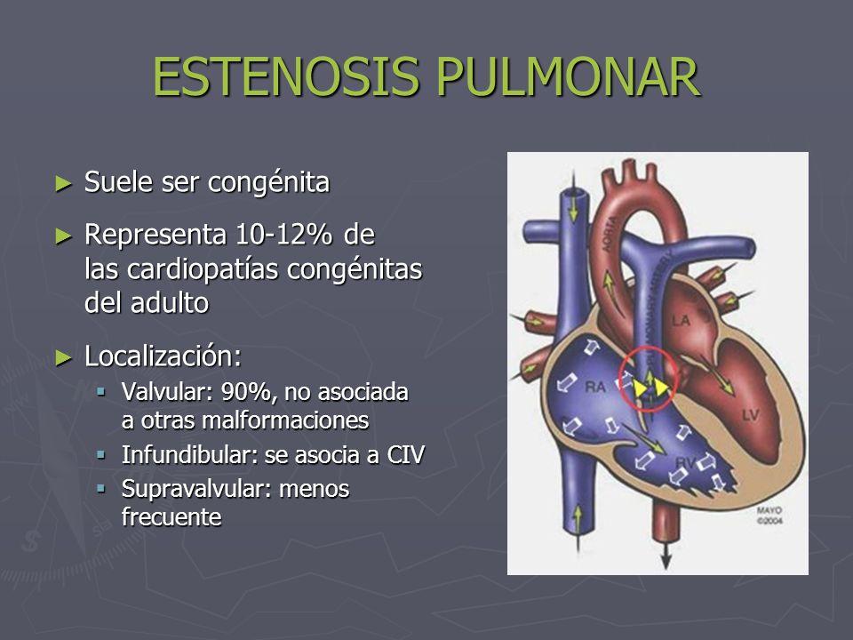 ESTENOSIS PULMONAR Suele ser congénita Suele ser congénita Representa 10-12% de las cardiopatías congénitas del adulto Representa 10-12% de las cardio