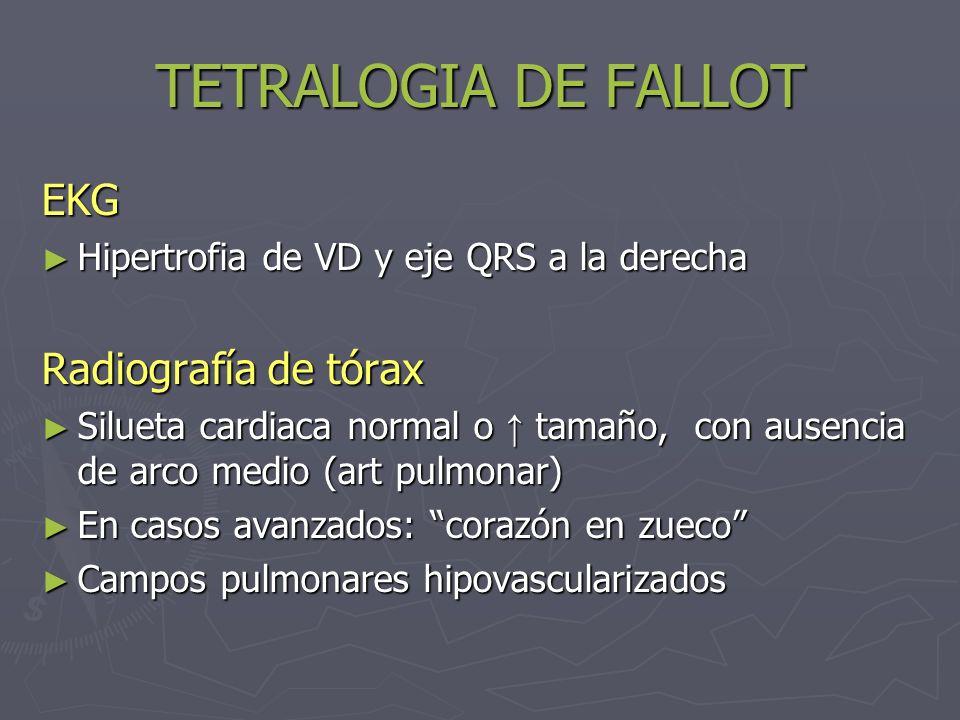 TETRALOGIA DE FALLOT EKG Hipertrofia de VD y eje QRS a la derecha Hipertrofia de VD y eje QRS a la derecha Radiografía de tórax Silueta cardiaca norma