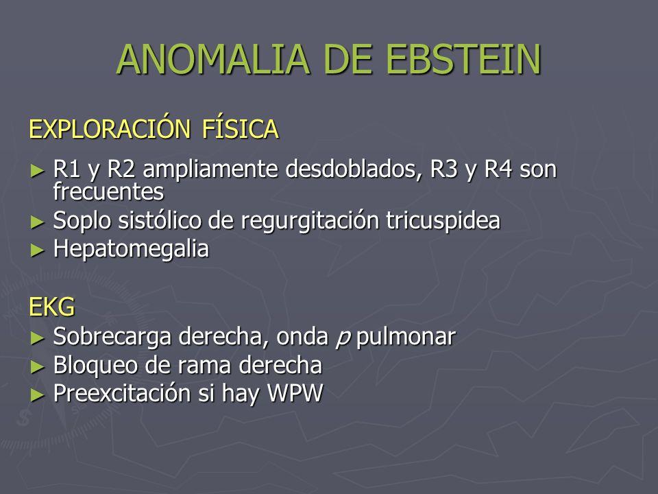 ANOMALIA DE EBSTEIN Radiografía de tórax Cardiomegalia a expensas de AD Cardiomegalia a expensas de AD En casos avanzados: flujo pulmonar disminuido En casos avanzados: flujo pulmonar disminuidoEcocardiografía Determina alteración anatómica y funcional de V.