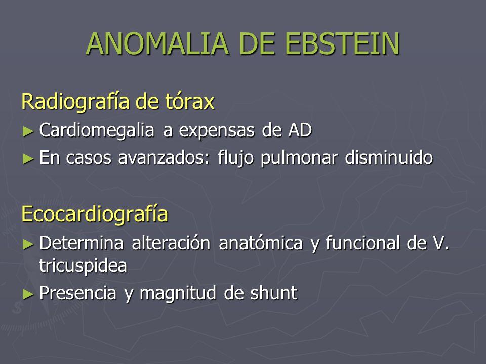 ANOMALIA DE EBSTEIN Radiografía de tórax Cardiomegalia a expensas de AD Cardiomegalia a expensas de AD En casos avanzados: flujo pulmonar disminuido E