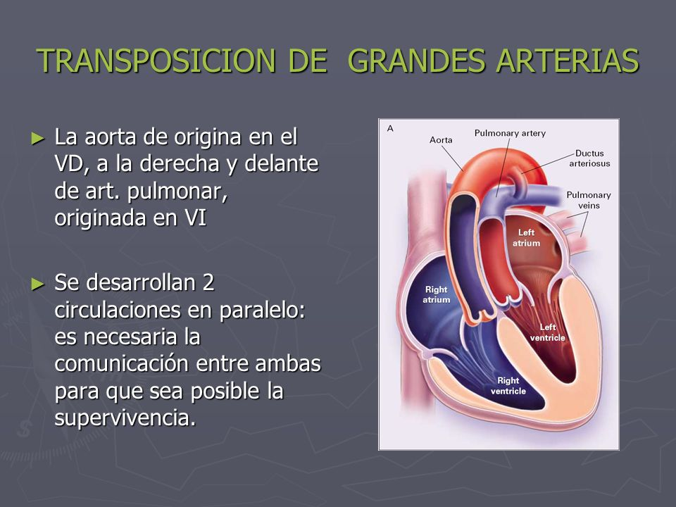 TRANSPOSICION DE GRANDES ARTERIAS La aorta de origina en el VD, a la derecha y delante de art. pulmonar, originada en VI La aorta de origina en el VD,