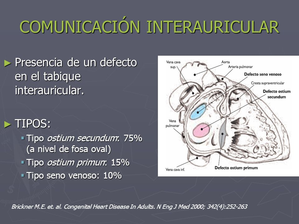 COMUNICACIÓN INTERAURICULAR Es la cardiopatía más frecuente en el adulto Es la cardiopatía más frecuente en el adulto Representa un tercio de los casos en adultos Representa un tercio de los casos en adultos Es más frecuente en mujeres: 2-3 veces Es más frecuente en mujeres: 2-3 veces
