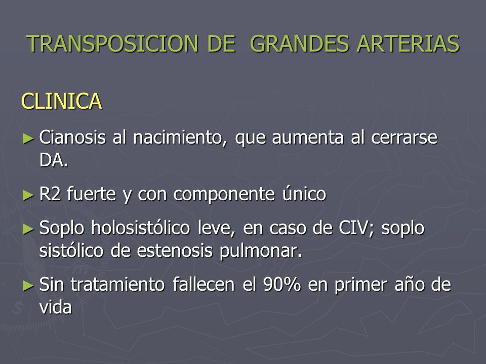 TRANSPOSICION DE GRANDES ARTERIAS CLINICA Cianosis al nacimiento, que aumenta al cerrarse DA. Cianosis al nacimiento, que aumenta al cerrarse DA. R2 f