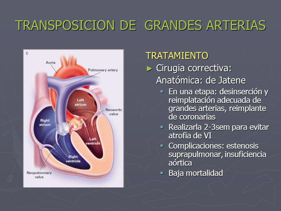 TRANSPOSICION DE GRANDES ARTERIAS TRATAMIENTO Cirugia correctiva: Anatómica: de Jatene En una etapa: desinserción y reimplatación adecuada de grandes