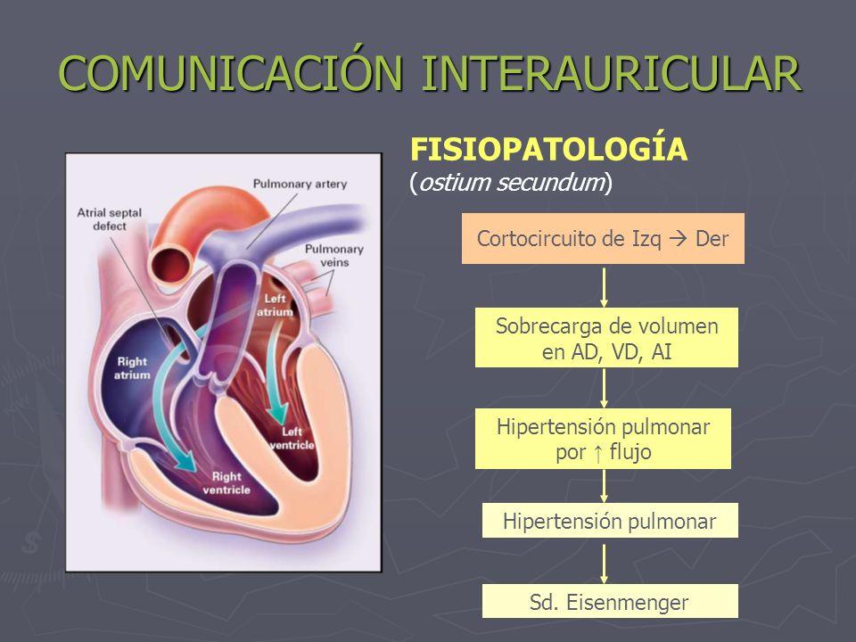 COMUNICACIÓN INTERAURICULAR Cortocircuito de Izq Der Sobrecarga de volumen en AD, VD, AI Hipertensión pulmonar por flujo Hipertensión pulmonar Sd. Eis
