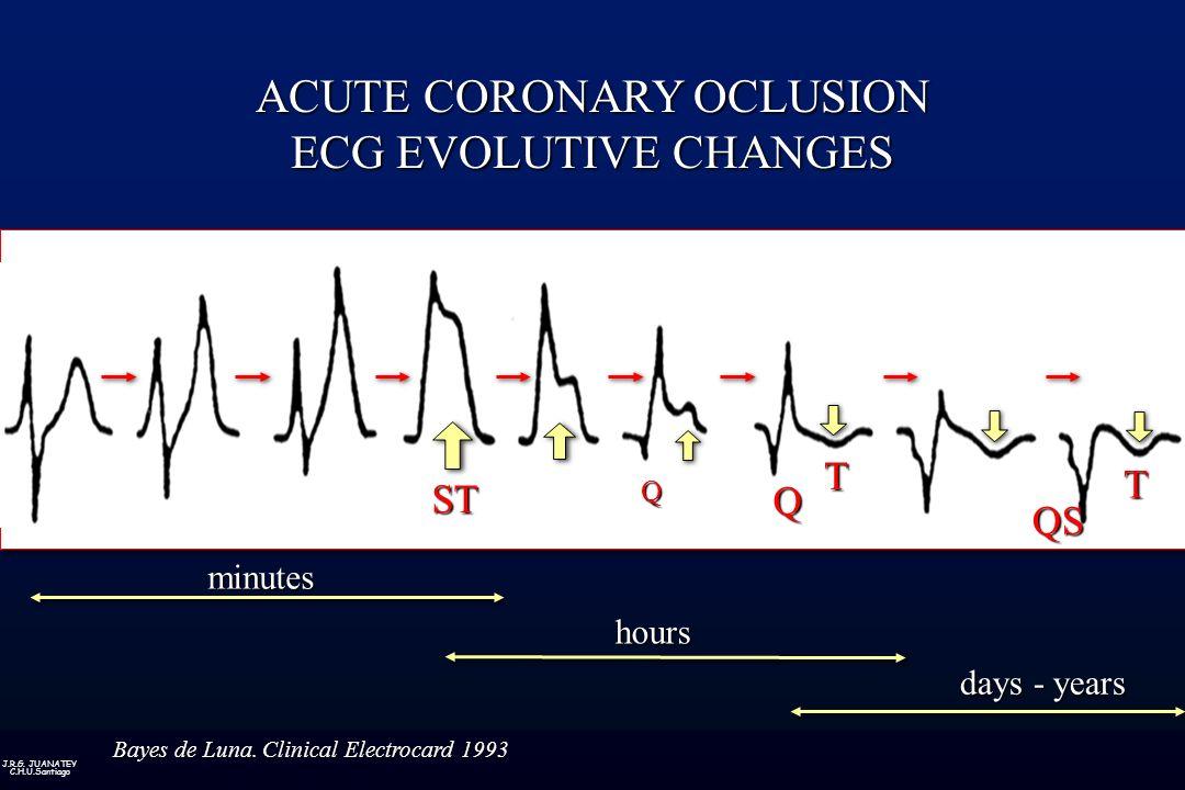J.R.G. JUANATEY C.H.U.Santiago minutes hours days - years ACUTE CORONARY OCLUSION ECG EVOLUTIVE CHANGES ST Q Q T QS T Bayes de Luna. Clinical Electroc