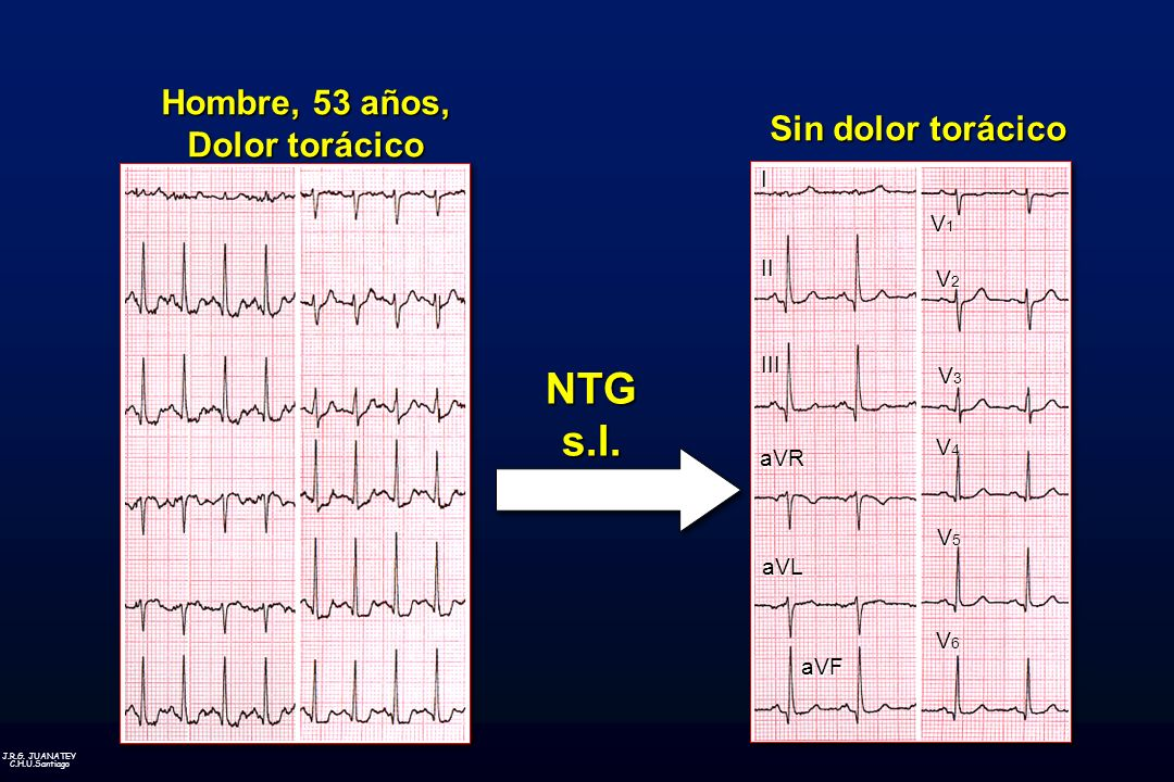 J.R.G. JUANATEY C.H.U.Santiago Hombre, 53 años, Dolor torácico Sin dolor torácico NTG s.l. I II III aVR aVL aVF V1V1V1V1 V2V2V2V2 V3V3V3V3 V4V4V4V4 V5