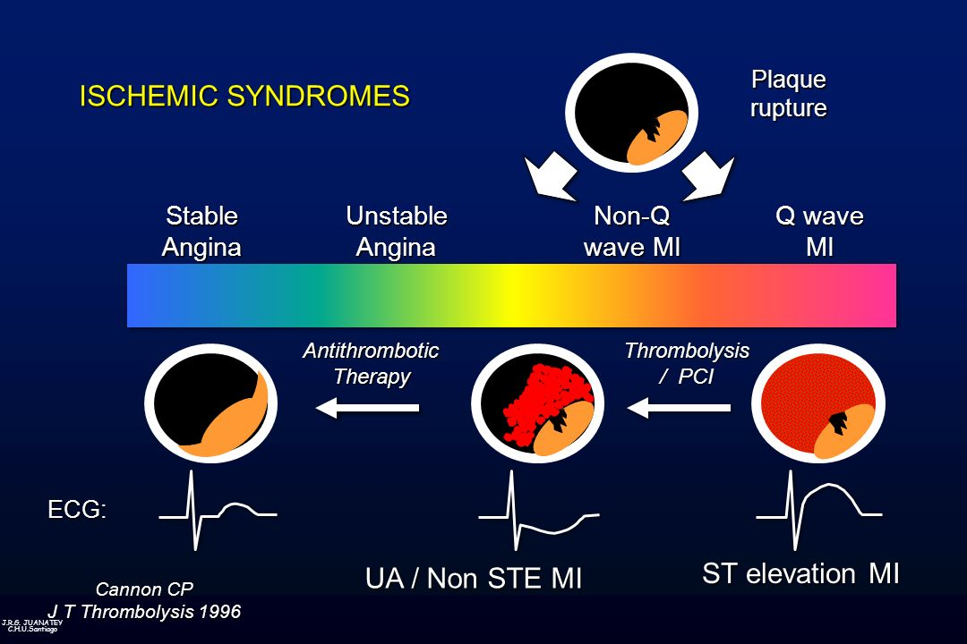J.R.G. JUANATEY C.H.U.Santiago ISCHEMIC SYNDROMES AntithromboticTherapyThrombolysis / PCI ECG:UnstableAnginaNon-Q wave MI StableAngina Q wave MIPlaque
