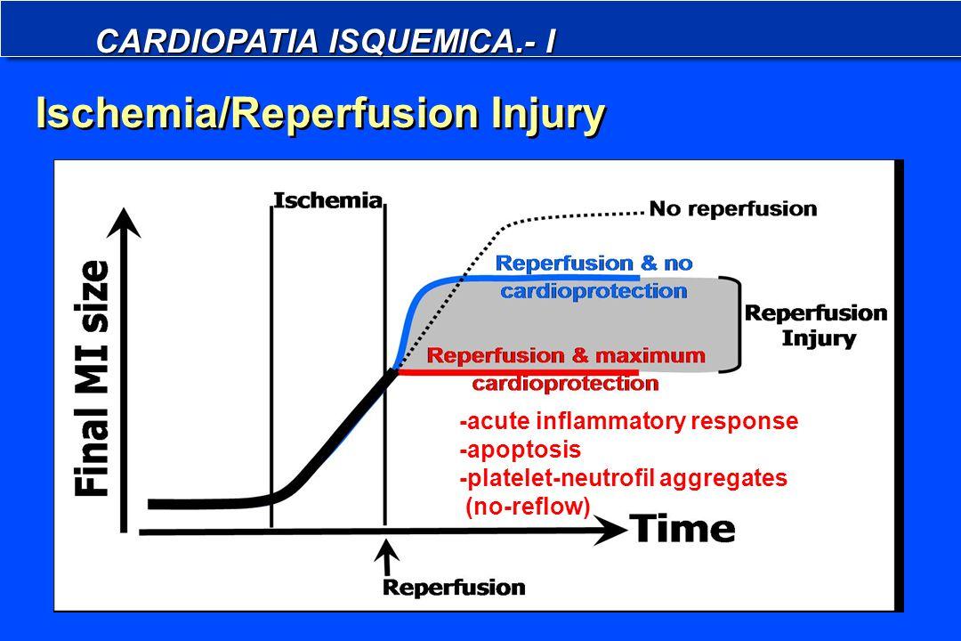 CARDIOPATIA ISQUEMICA.- I Ischemia/Reperfusion Injury -acute inflammatory response -apoptosis -platelet-neutrofil aggregates (no-reflow)