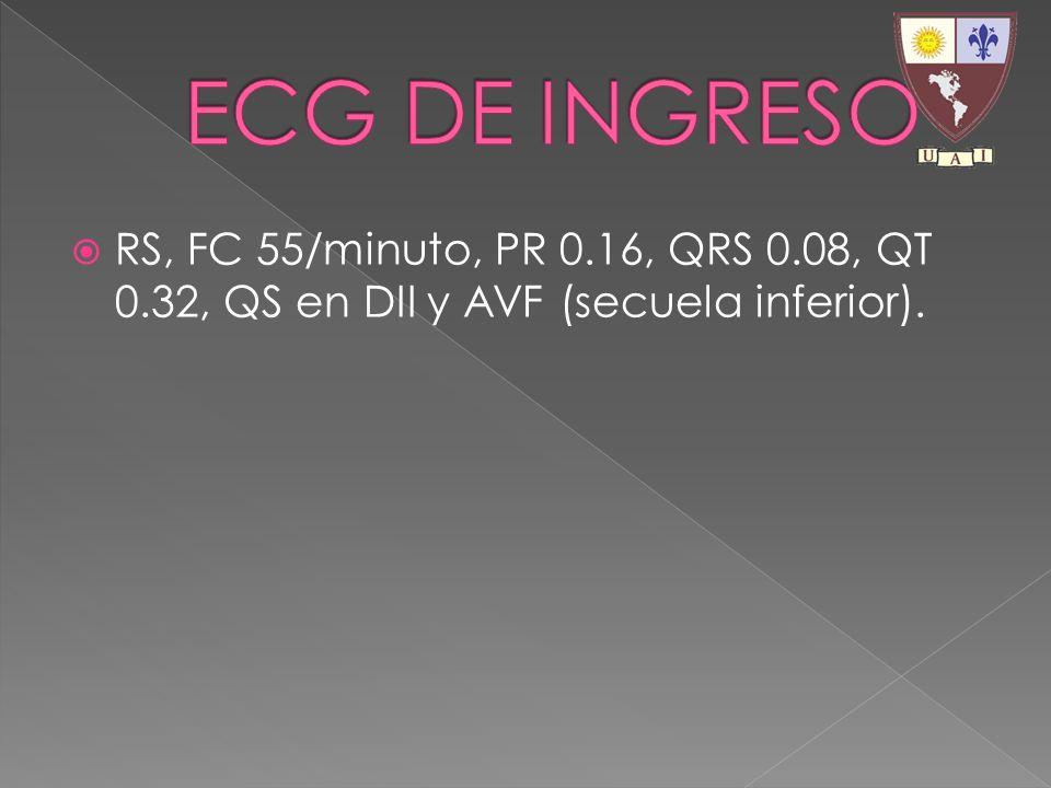 RS, FC 55/minuto, PR 0.16, QRS 0.08, QT 0.32, QS en DII y AVF (secuela inferior).