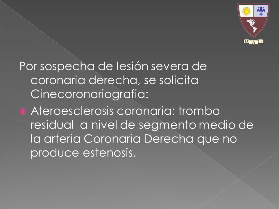 Por sospecha de lesión severa de coronaria derecha, se solicita Cinecoronariografia: Ateroesclerosis coronaria: trombo residual a nivel de segmento me