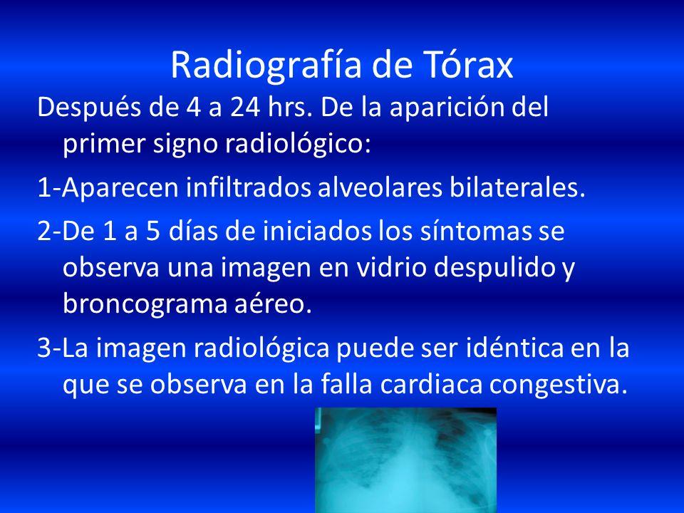 DIAGNÓSTICO 1.-Clínico 2.-Radiográfico. 3.-Tomografico. 4.-Lavado Broncoalveolar 5.-Gases sanguíneos