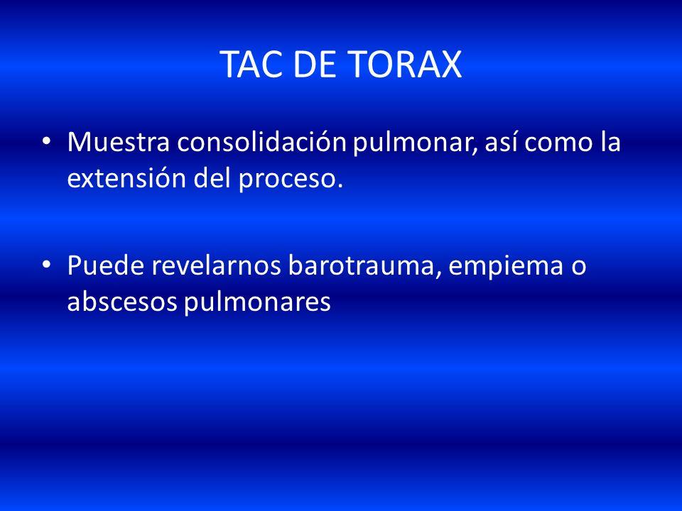 Radiografía de Tórax Después de 4 a 24 hrs. De la aparición del primer signo radiológico: 1-Aparecen infiltrados alveolares bilaterales. 2-De 1 a 5 dí