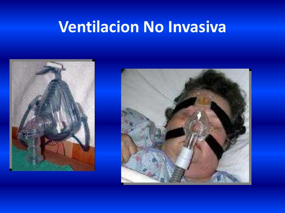 Opciones Terapéuticas – No invasivas: Oxigenoterapia – Mascarilla CPAP – Mascarilla nasal, facial – Reservorio de O 2 – Gafas nasales Tratamiento post