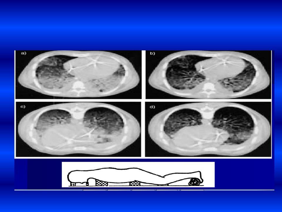 Colocación de decúbito supino a decúbito prono. Los pacientes tienen una mejor distribución mas uniforme de la presión pleural con mejor ajuste de ven