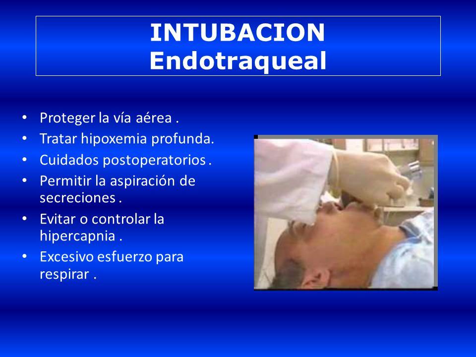www.reeme.arizona.edu INDICACIÓN DE VM – Apnea. – Hipoxemia grave a pesar de oxigenote-rapia adecuada. – Hipercapnia. – Fatiga muscular. – Deterioro d
