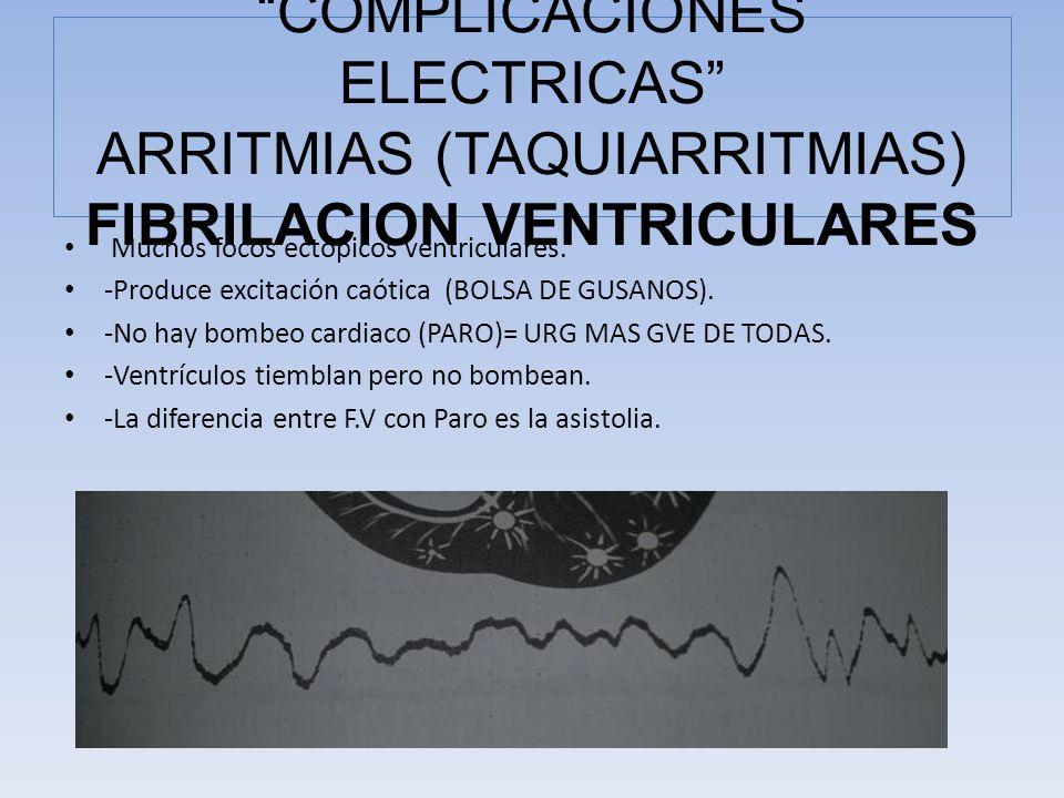 Muchos focos ectópicos ventriculares. -Produce excitación caótica (BOLSA DE GUSANOS). -No hay bombeo cardiaco (PARO)= URG MAS GVE DE TODAS. -Ventrícul