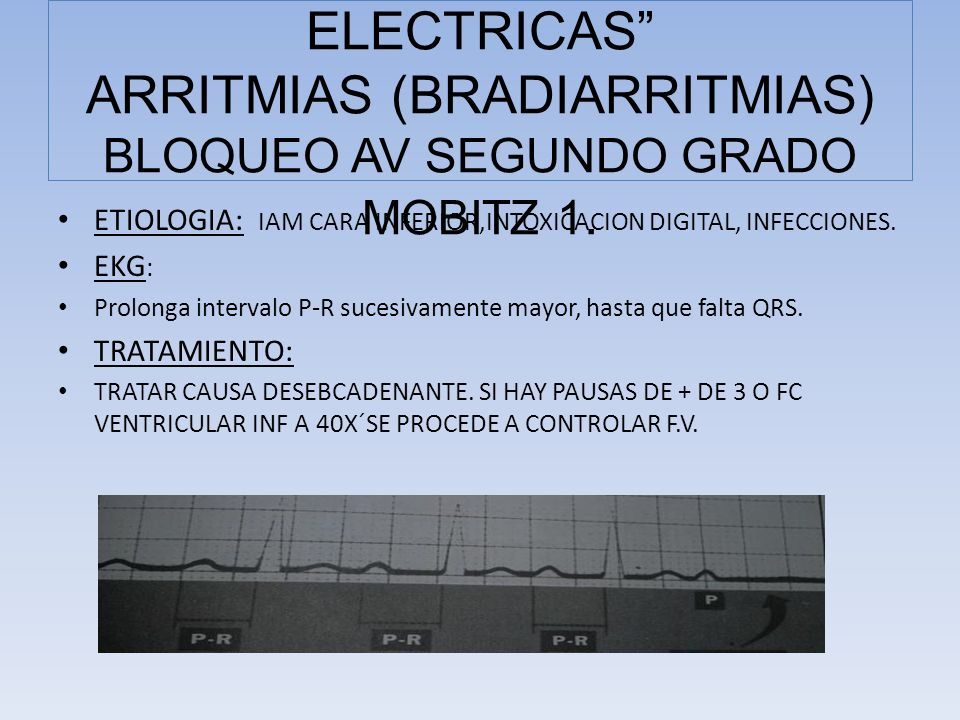 ETIOLOGIA: IAM CARA INFERIOR,INTOXICACION DIGITAL, INFECCIONES. EKG : Prolonga intervalo P-R sucesivamente mayor, hasta que falta QRS. TRATAMIENTO: TR