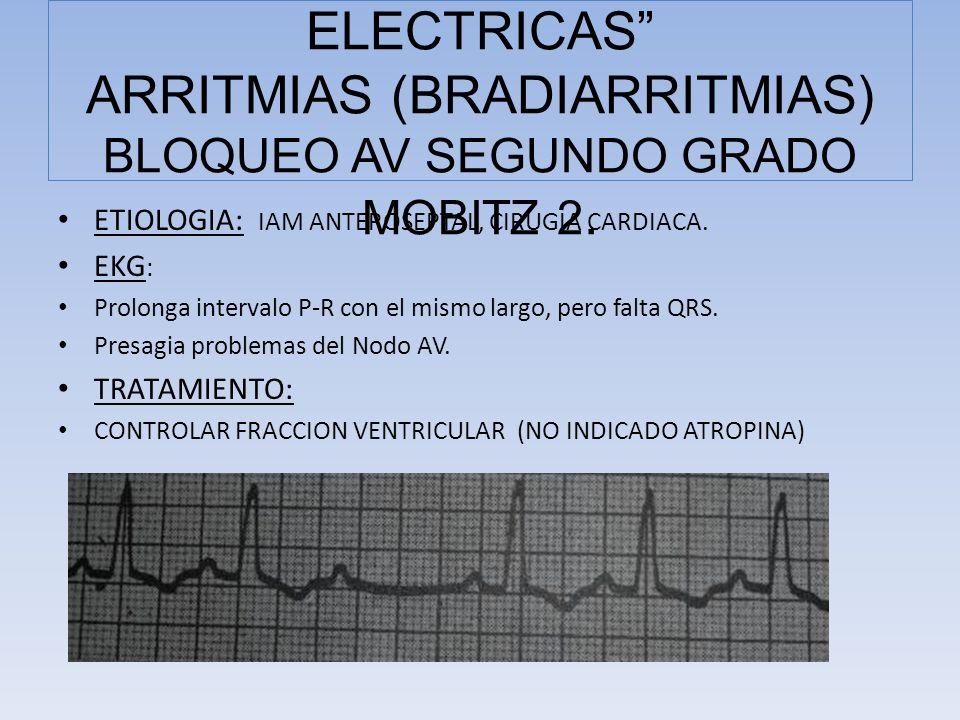 ETIOLOGIA: IAM ANTEROSEPTAL, CIRUGIA CARDIACA. EKG : Prolonga intervalo P-R con el mismo largo, pero falta QRS. Presagia problemas del Nodo AV. TRATAM