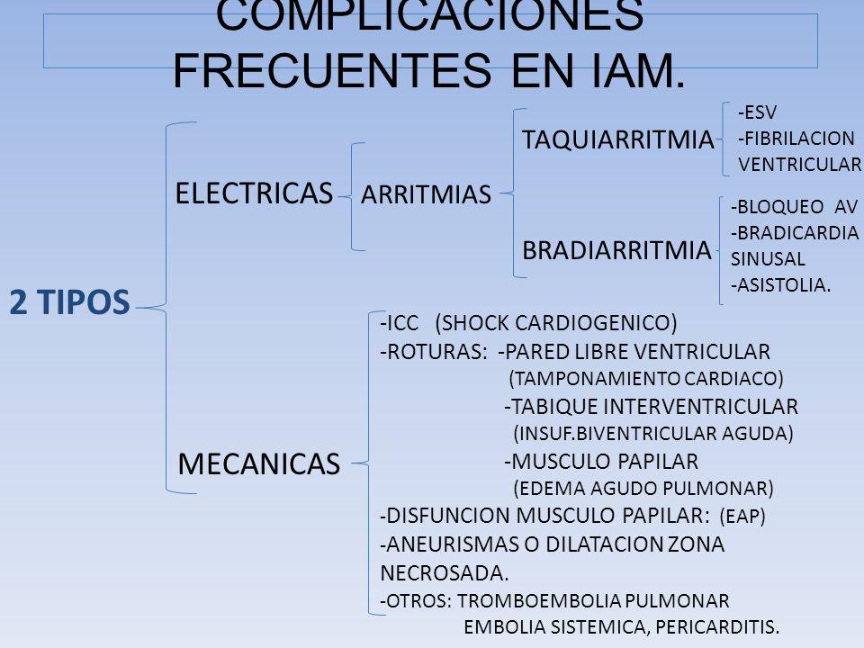 COMPLICACIONES FRECUENTES EN IAM. TAQUIARRITMIA ELECTRICAS ARRITMIAS BRADIARRITMIA 2 TIPOS MECANICAS -ESV -FIBRILACION VENTRICULAR -BLOQUEO AV -BRADIC
