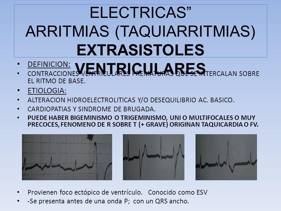 DEFINICION: CONTRACCIONES VENTRICULARES PREMATURAS QUE SE INTERCALAN SOBRE EL RITMO DE BASE. ETIOLOGIA : ALTERACION HIDROELECTROLITICAS Y/O DESEQUILIB