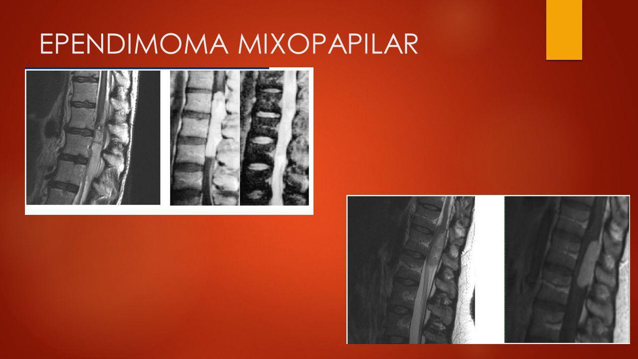 EPENDIMOMA MIXOPAPILAR