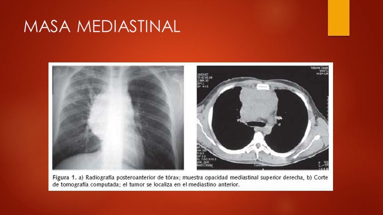 SANGRADO DE TUBO DIGESTIVO BAJO: INFECCIONES CON: Clostridium difficile, Cryptosporidium, Hongos --- sangre Colitis neutropenica.