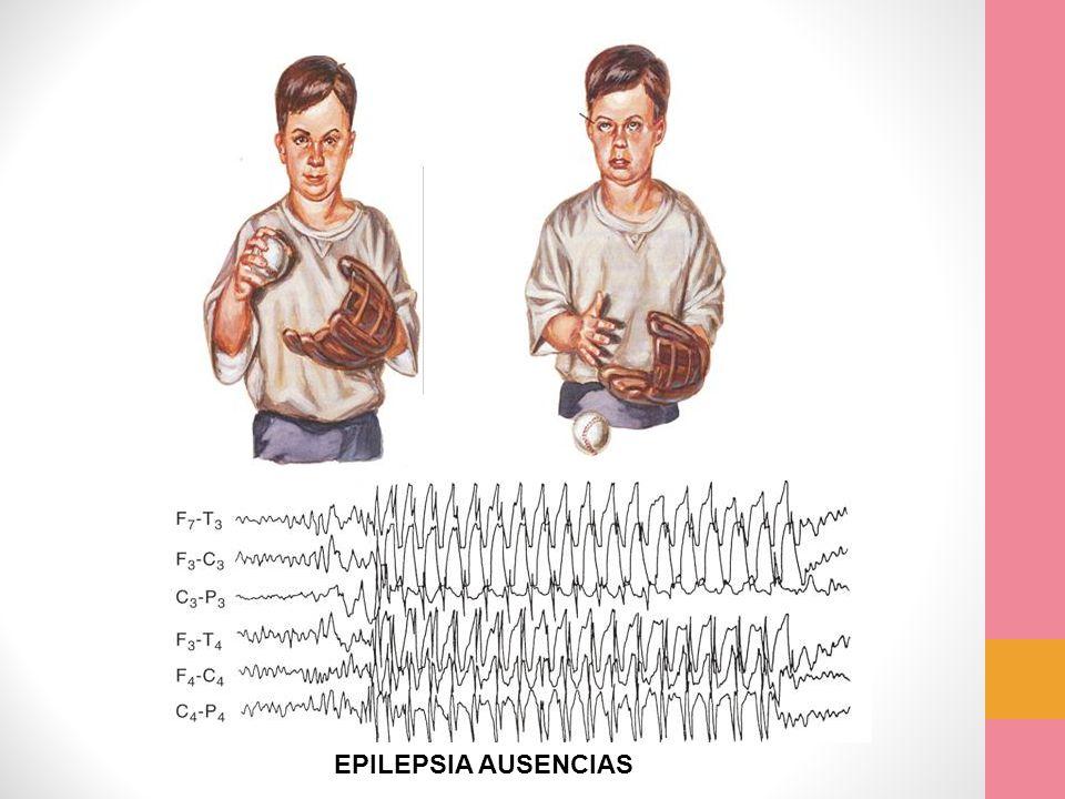 EPILEPSIA AUSENCIAS