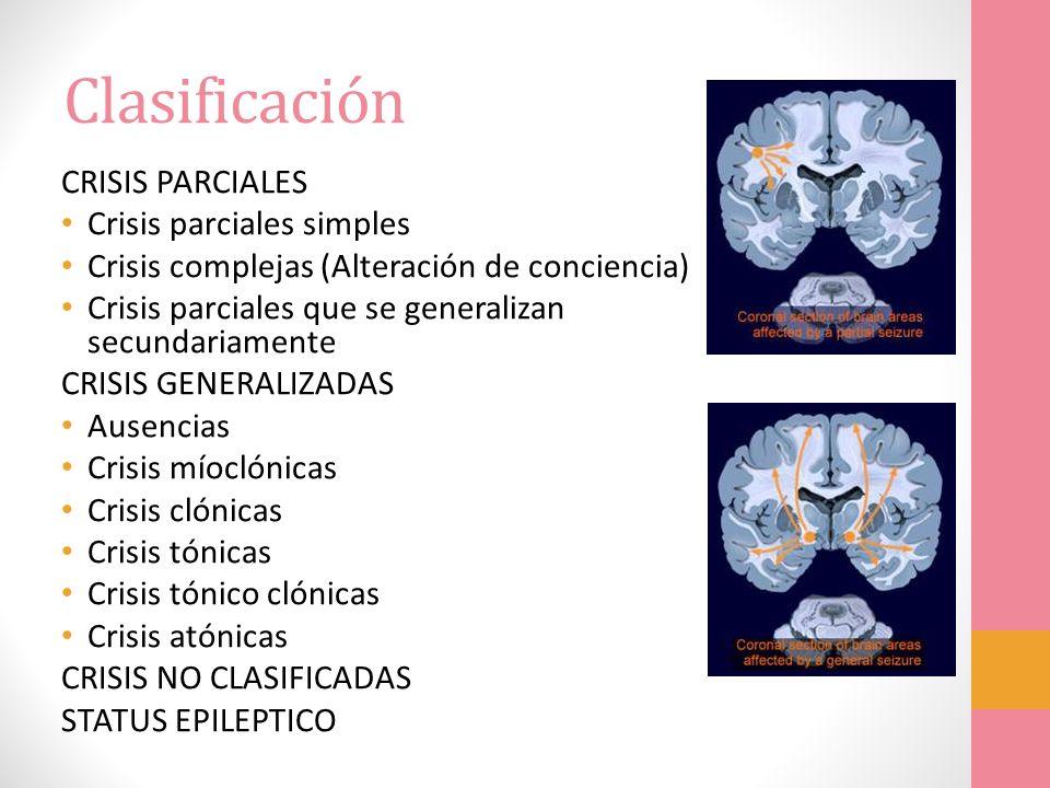 Clasificación CRISIS PARCIALES Crisis parciales simples Crisis complejas (Alteración de conciencia) Crisis parciales que se generalizan secundariament
