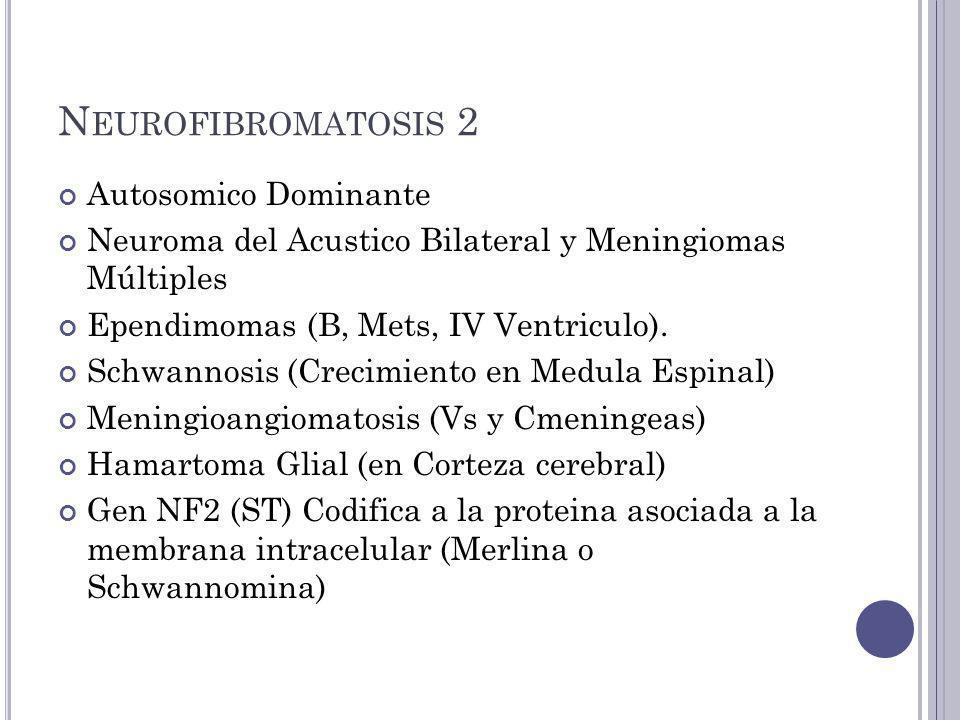 N EUROFIBROMATOSIS 2 Autosomico Dominante Neuroma del Acustico Bilateral y Meningiomas Múltiples Ependimomas (B, Mets, IV Ventriculo).