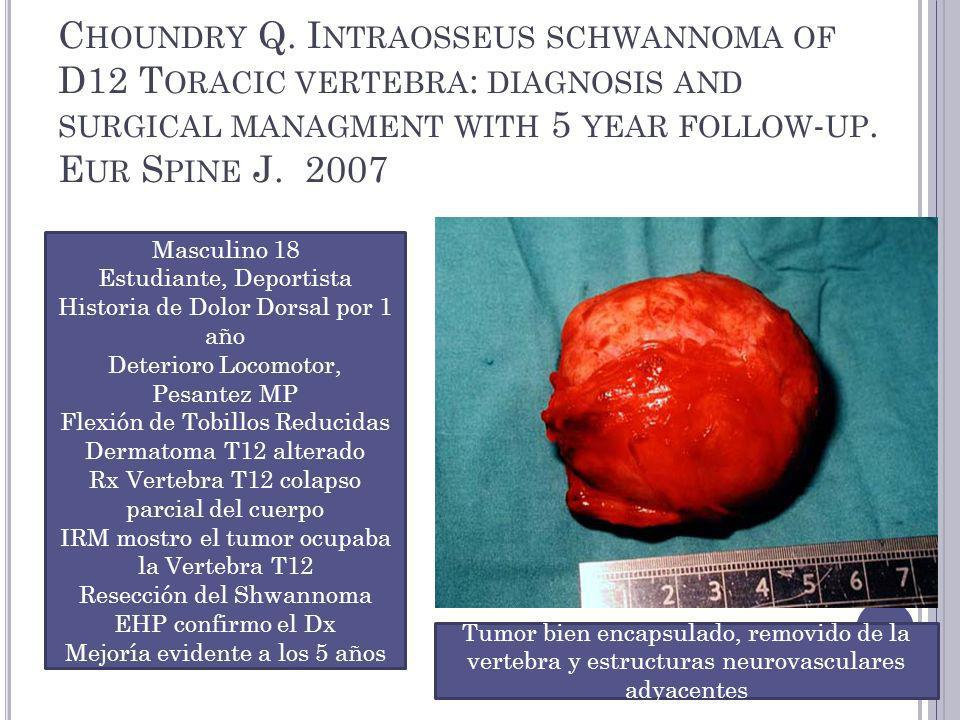 C HOUNDRY Q. I NTRAOSSEUS SCHWANNOMA OF D12 T ORACIC VERTEBRA : DIAGNOSIS AND SURGICAL MANAGMENT WITH 5 YEAR FOLLOW - UP. E UR S PINE J. 2007 Masculin