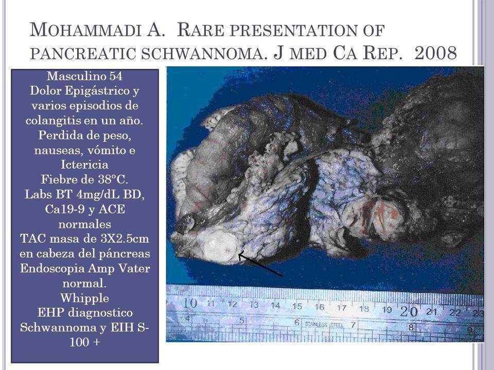 M OHAMMADI A.R ARE PRESENTATION OF PANCREATIC SCHWANNOMA.