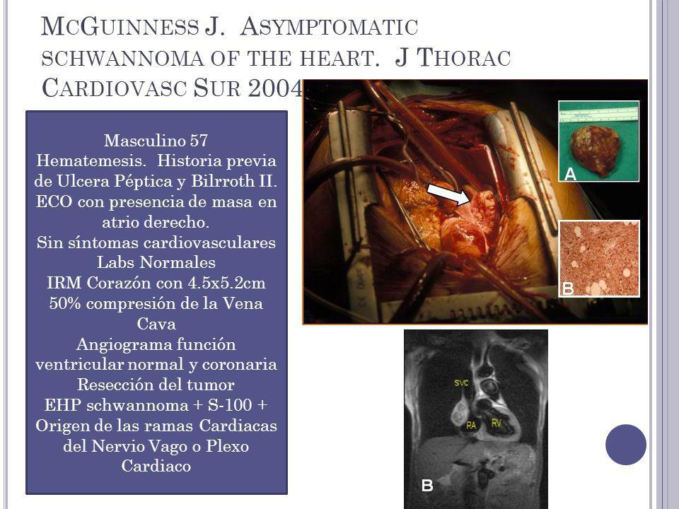 M C G UINNESS J.A SYMPTOMATIC SCHWANNOMA OF THE HEART.