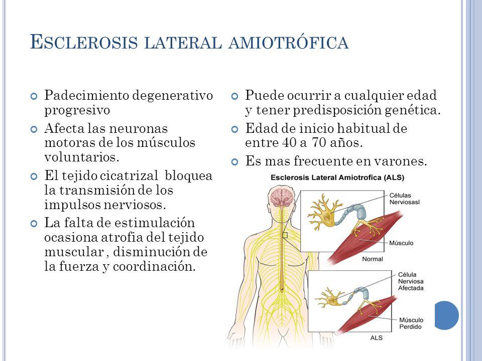 E SCLEROSIS LATERAL AMIOTRÓFICA Padecimiento degenerativo progresivo Afecta las neuronas motoras de los músculos voluntarios.