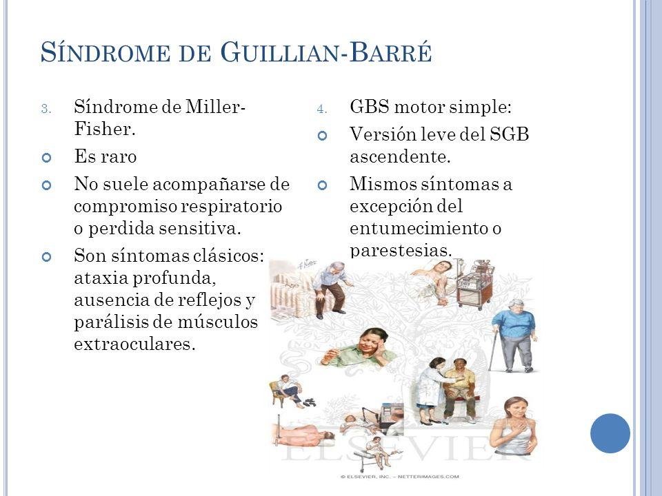 S ÍNDROME DE G UILLIAN -B ARRÉ 3.Síndrome de Miller- Fisher.