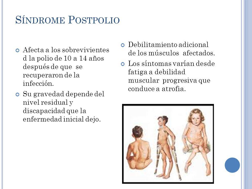 S ÍNDROME P OSTPOLIO Afecta a los sobrevivientes d la polio de 10 a 14 años después de que se recuperaron de la infección.