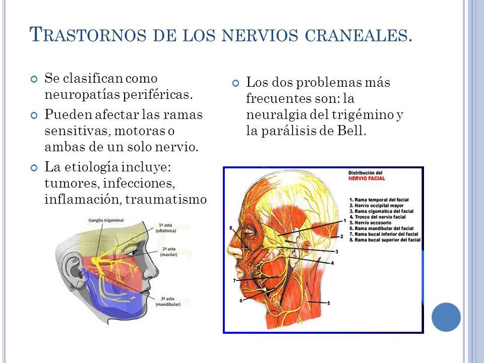 T RASTORNOS DE LOS NERVIOS CRANEALES.Se clasifican como neuropatías periféricas.