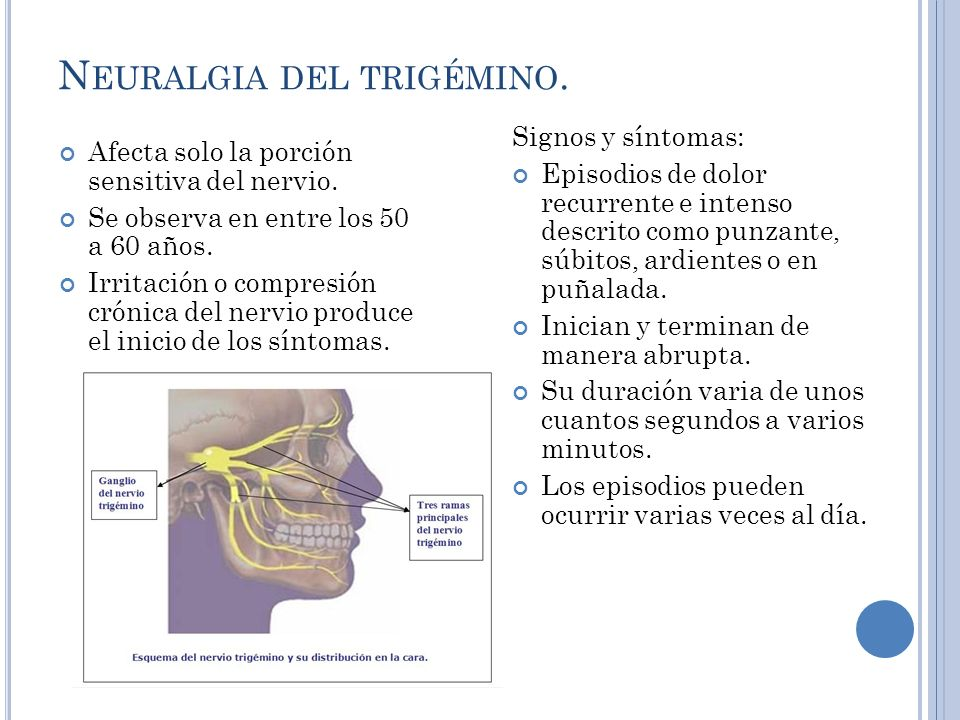 N EURALGIA DEL TRIGÉMINO.Afecta solo la porción sensitiva del nervio.