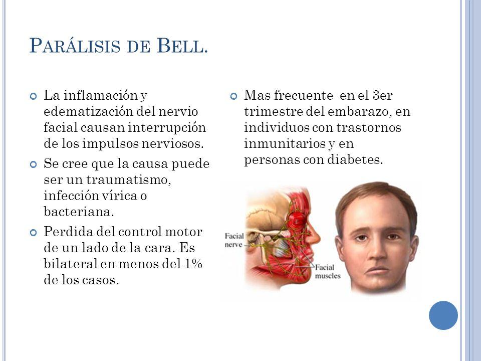 P ARALISIS DE B ELL Signos y síntomas: Puede ser súbito y evolucionar durante 2 a 5 días.