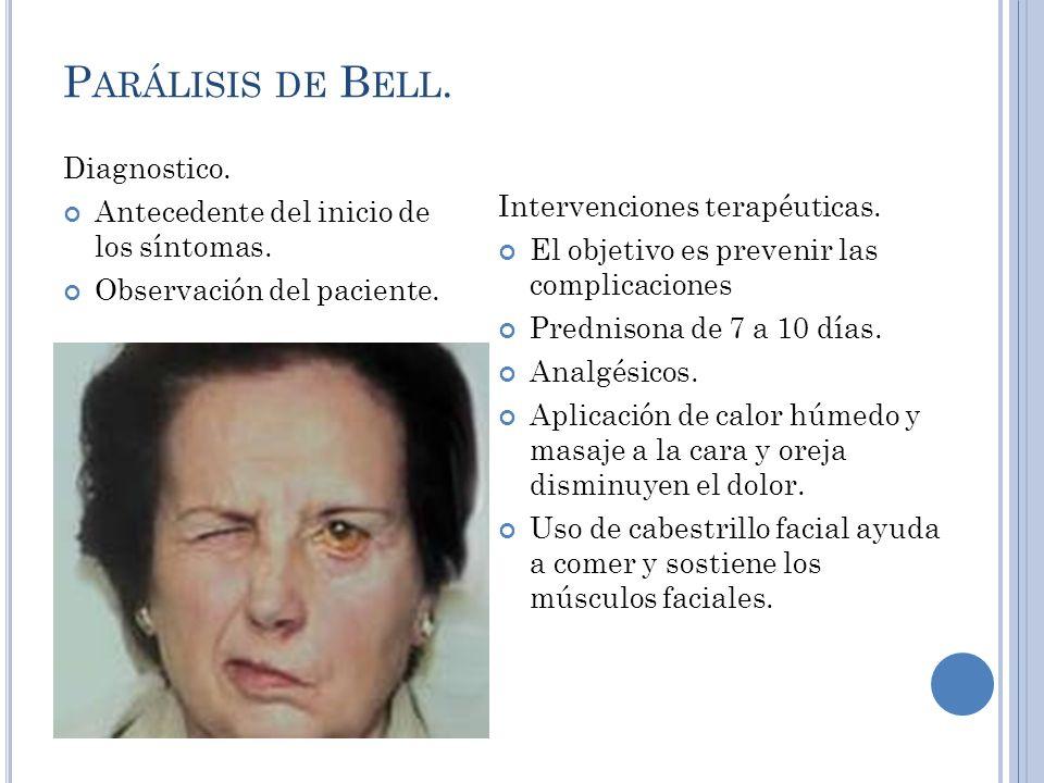 P ARÁLISIS DE B ELL.Diagnostico. Antecedente del inicio de los síntomas.