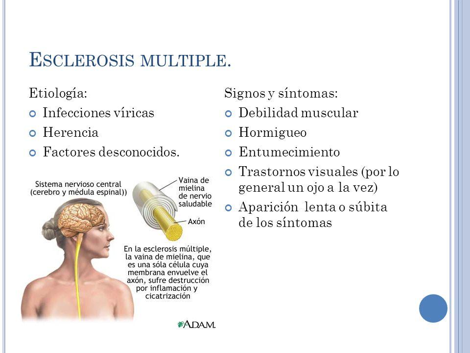 E SCLEROSIS MULTIPLE.Etiología: Infecciones víricas Herencia Factores desconocidos.