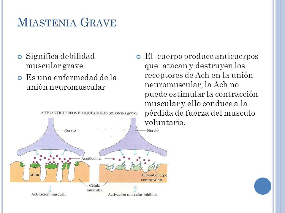 M IASTENIA GRAVE Causas Sin causa especifica, aunque se cree que un virus puede desencadenarla.