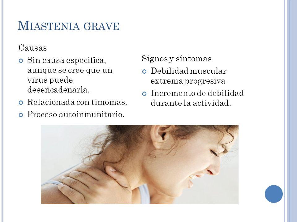 M IASTENIA GRAVE.
