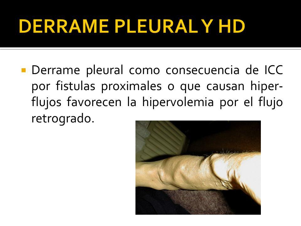 Derrame pleural como consecuencia de ICC por fistulas proximales o que causan hiper- flujos favorecen la hipervolemia por el flujo retrogrado.